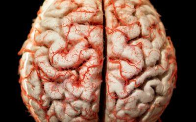 Enfermedad de Huntington: Una extraña patología que afecta el cerebro